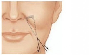 Odstránenie nasolabiálnej ryhy metódou SurgiWire
