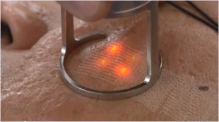 co2-frakcny-laser
