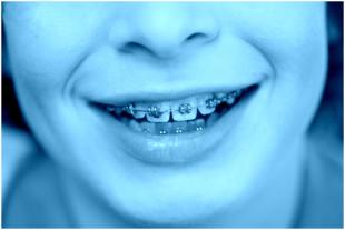 Zubny-strojcek-modry-ilustr